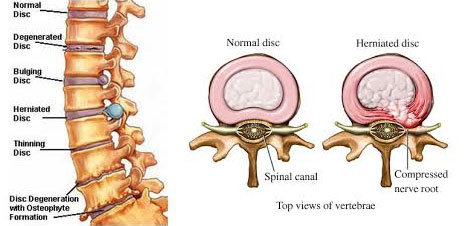 normal disc slipped disc diagram