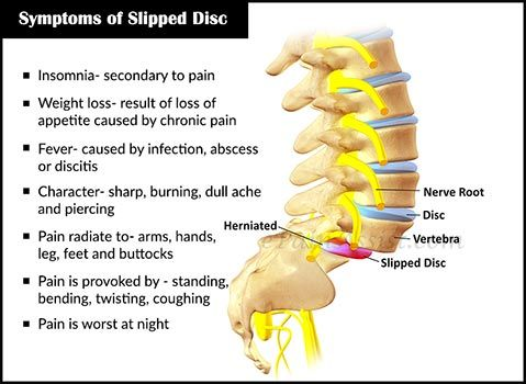 slipped disc symptoms