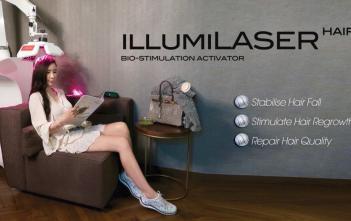 illumi laser