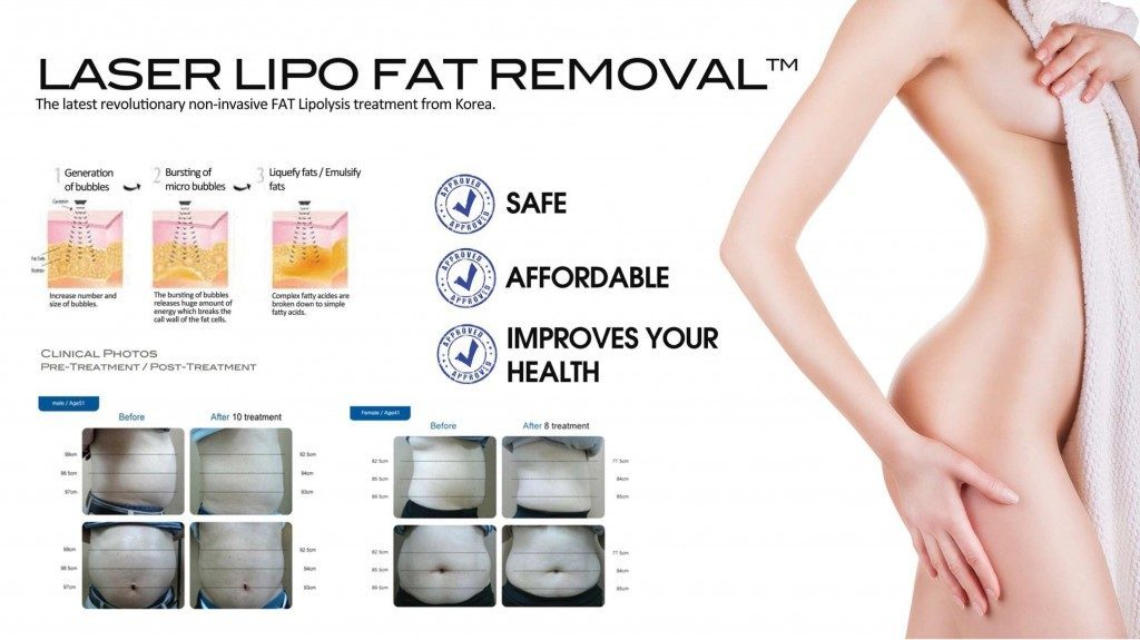 Laser Lipo Fat Removal Safe & Afordable