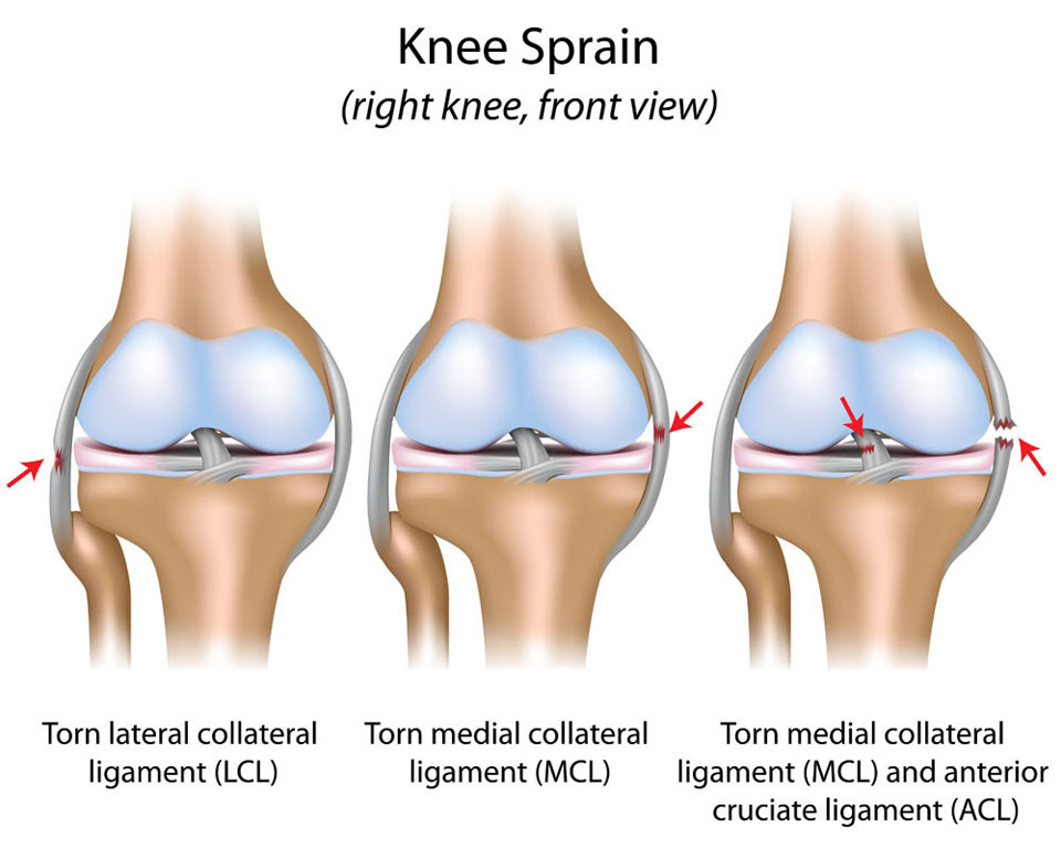 ligament tear knee sprain symptoms