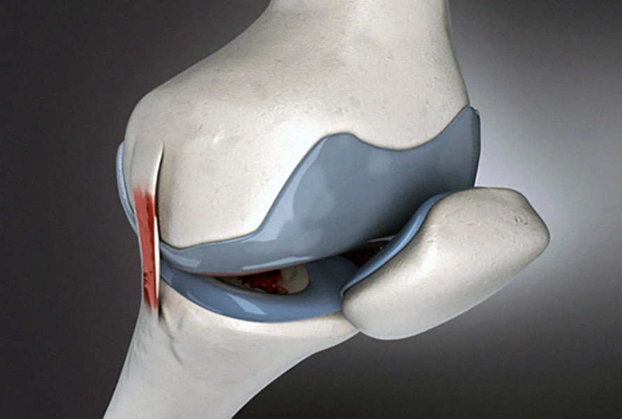 makoplasty knee