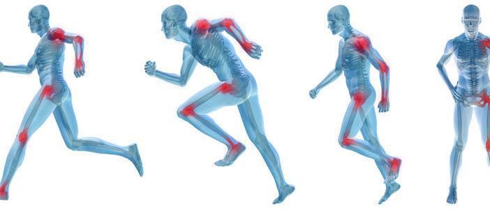 arthritis osteoporosis