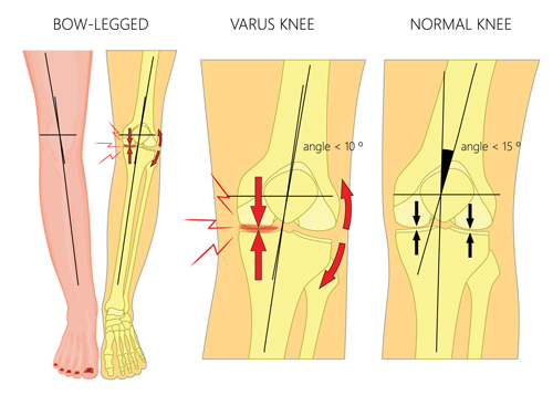 how-does-knee-replacement-work