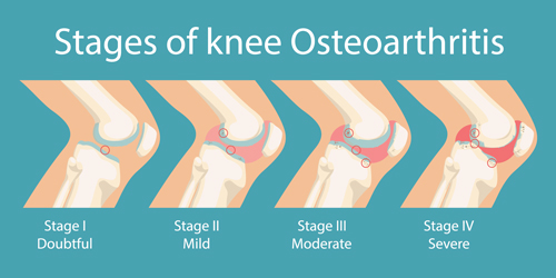 knee-pain-stages