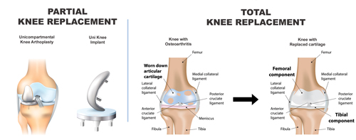 partial-total-knee-replacement