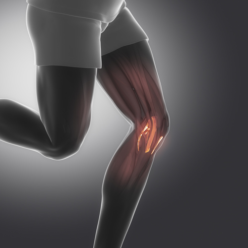 acl-pain