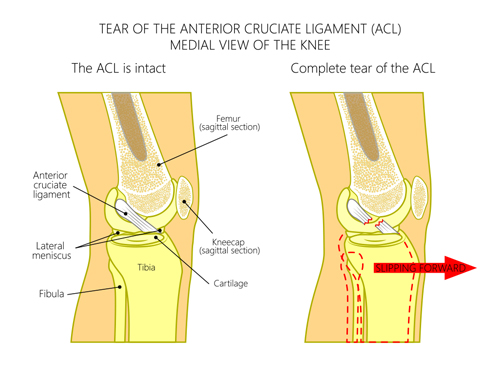 acl-tear-complete