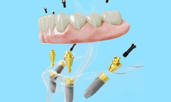 all on 4 dental implants review